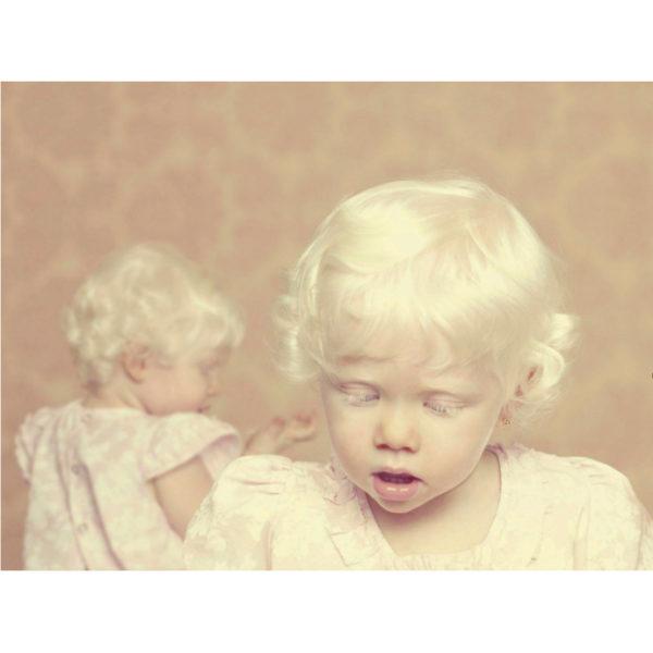 Gustavo Lacerda - Albinos 04