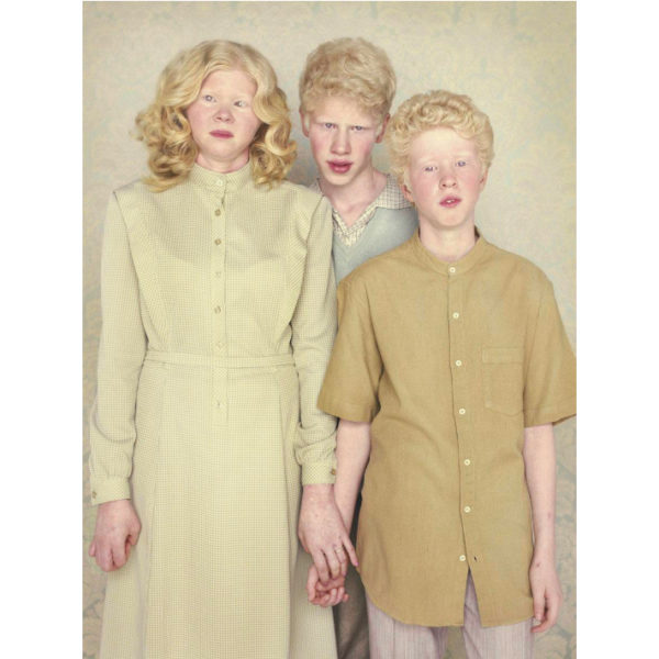 Gustavo Lacerda - Albinos 05