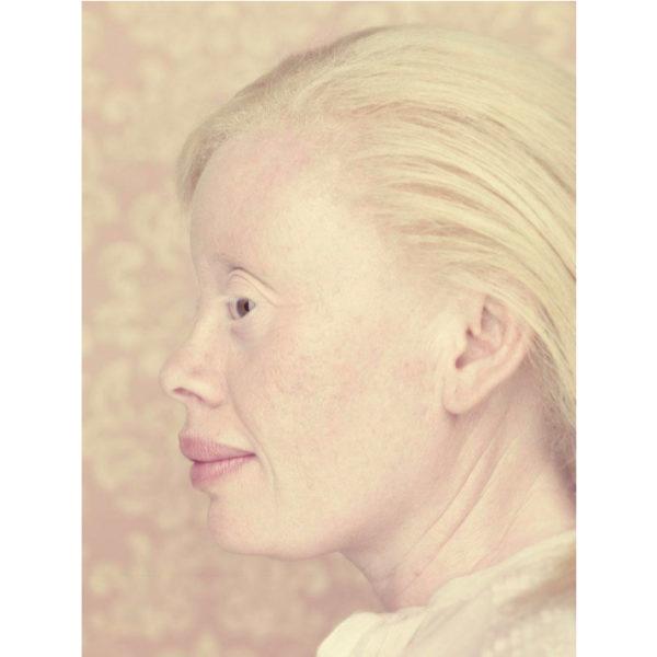 Gustavo Lacerda - Albinos 07